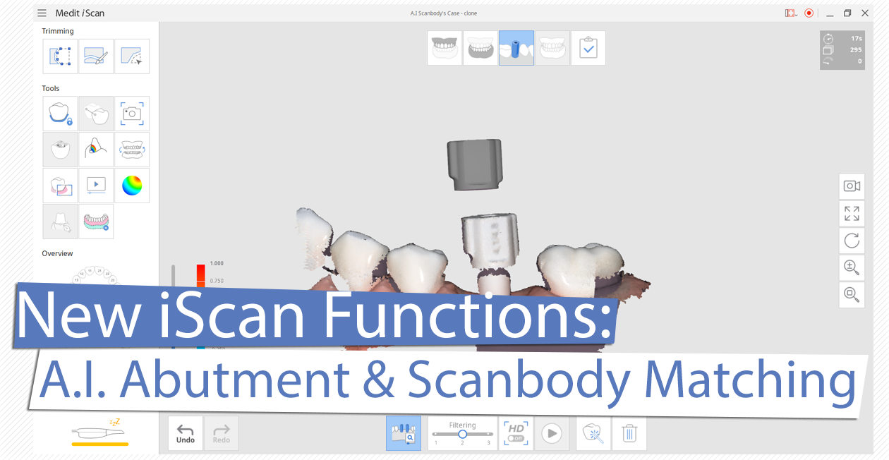 New iScan Functions: A.I. Abutment and Scanbody Matching