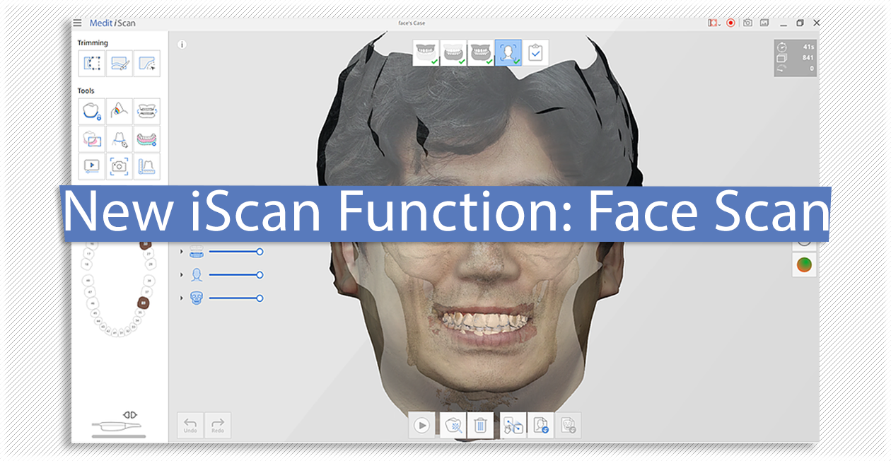 New iScan Function: Face Scan