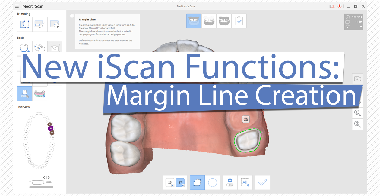 New iScan Functions: Margin Line Creation