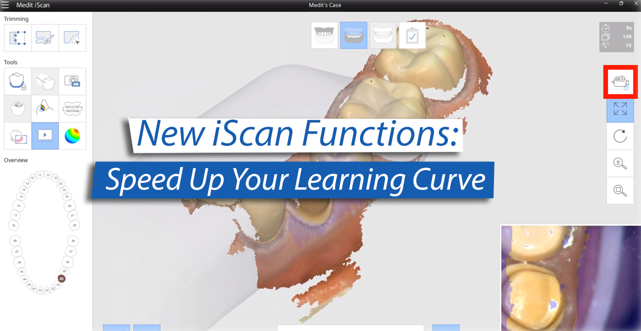New iScan Functions: Speed Up Your Learning Curve