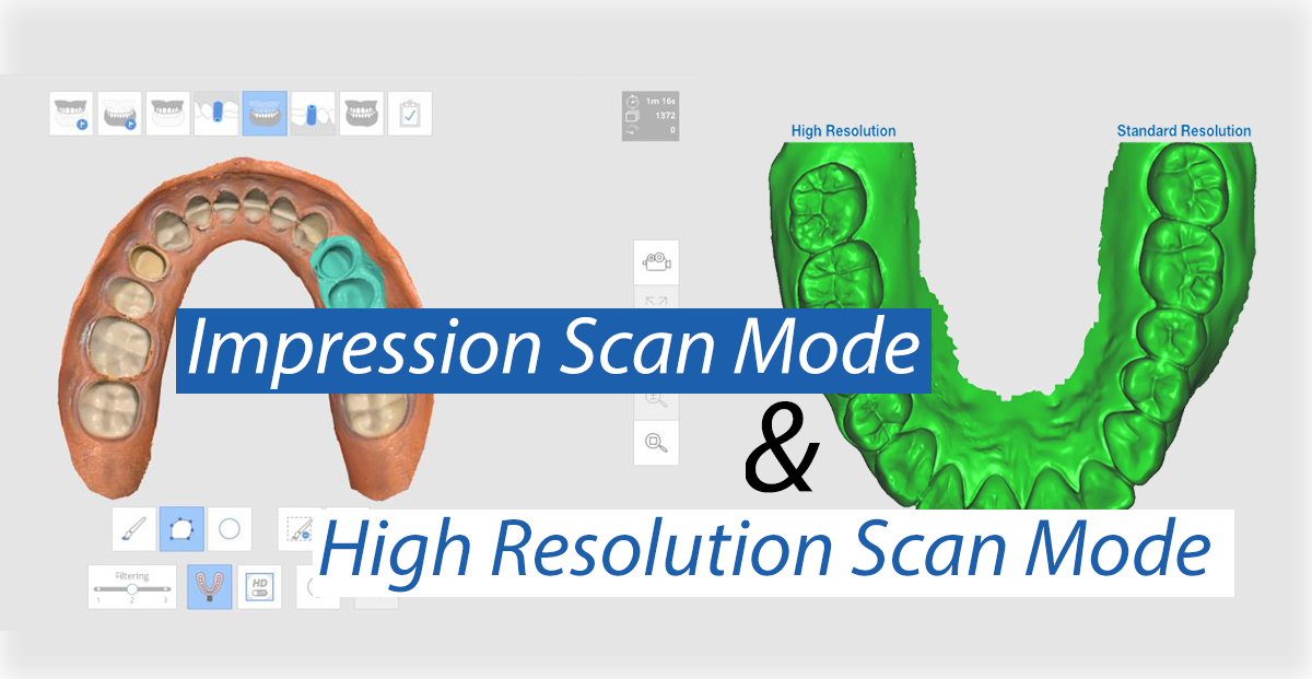New iScan Functions: Impression Scan & High Resolution Scan
