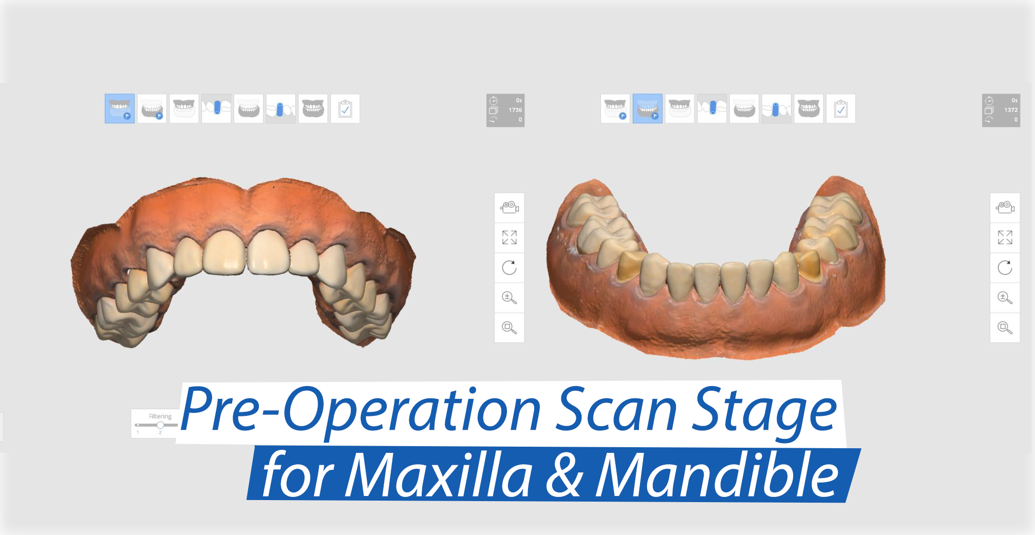 pre-op-scan